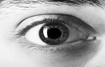 Glaucoma is loss of vision resulting from damage to optic nerve fibre due to elevated intraocular pressure.